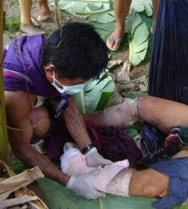 Landmine injury